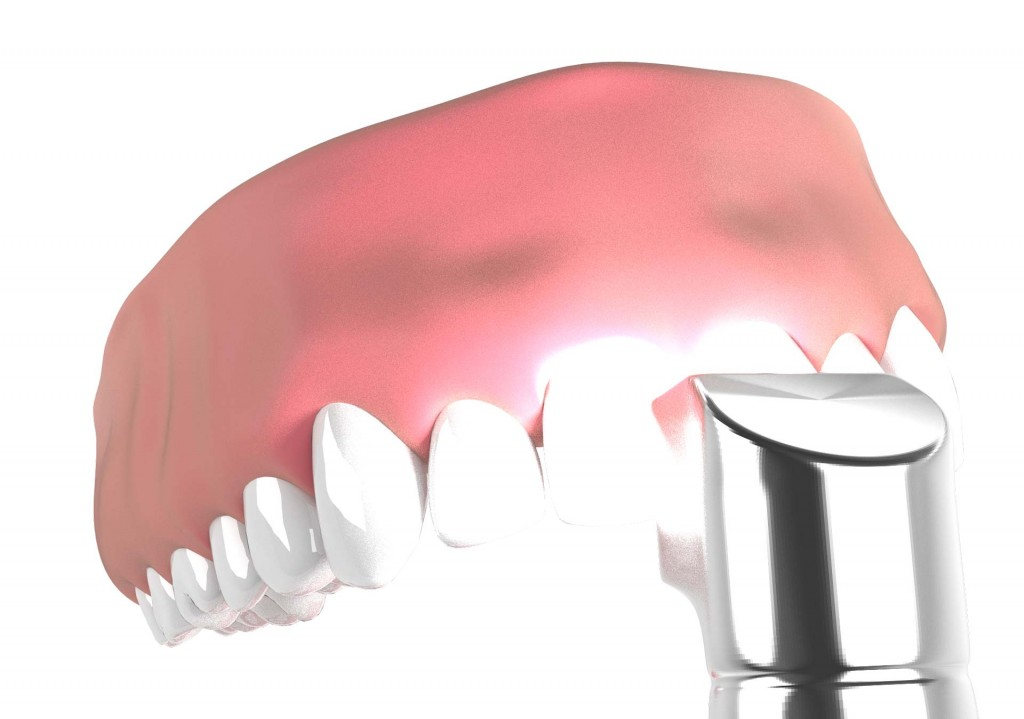 110471cadbeddb Facettes dentaires   Bücco