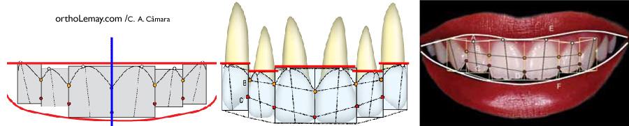 Proportion des dents et gencive pour un sourire harmonieus et esthétique