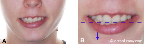 Sourire asymétrique causé par un dégagement inégal de la lèvre inférieure.