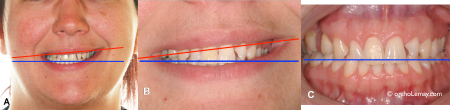 Asymétrie du sourire causée par les lévres et non par une malocclusion.