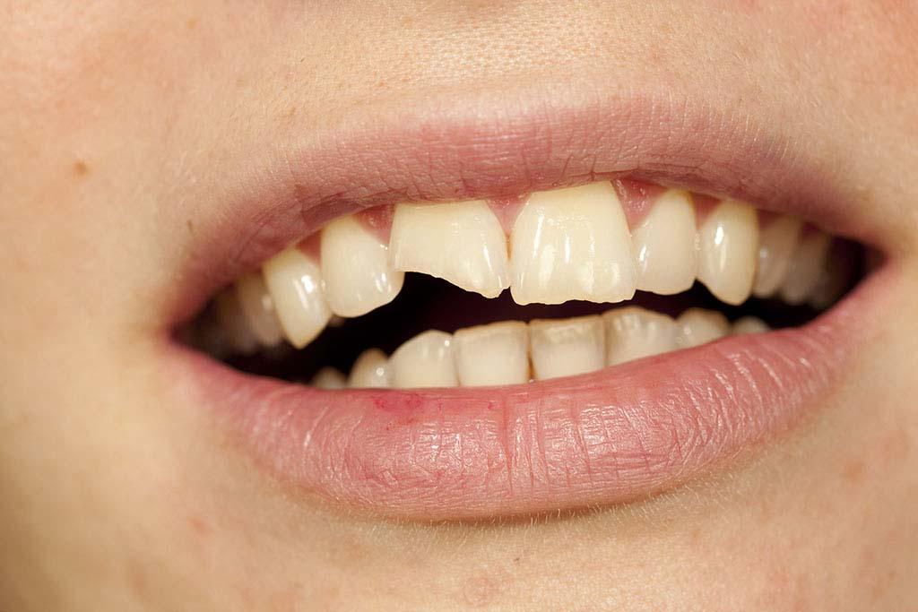 chocs sur les dents quoi faire avant d 39 aller chez le dentiste b cco. Black Bedroom Furniture Sets. Home Design Ideas
