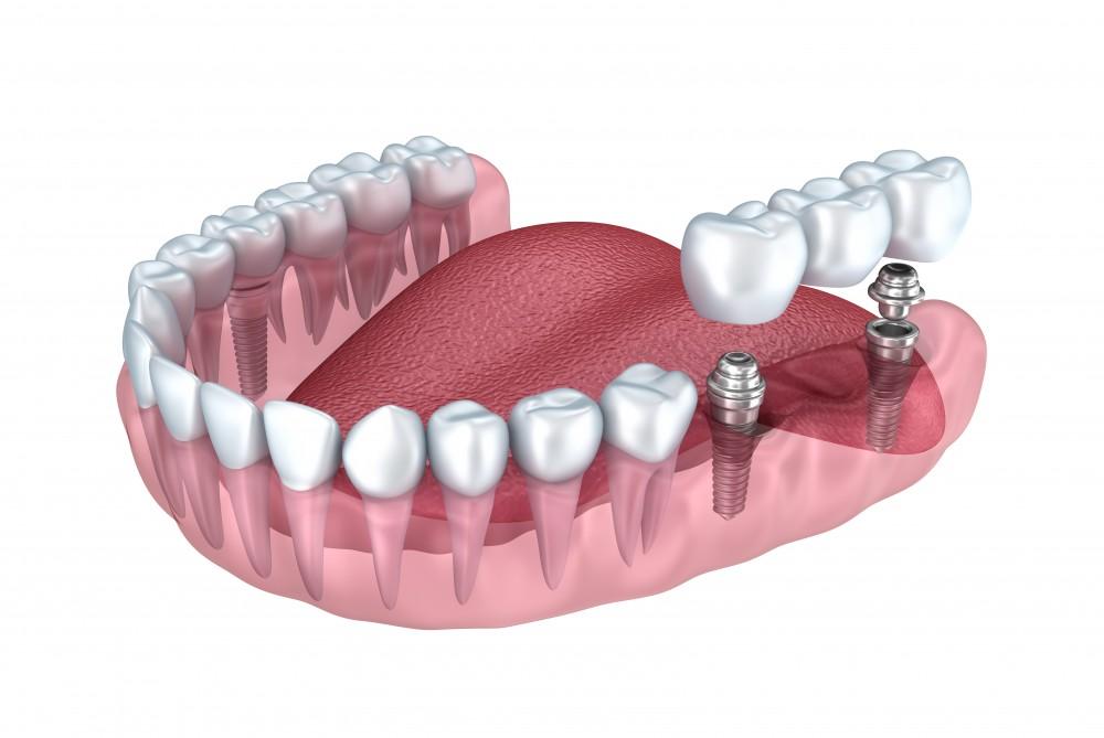 appareil dentaire avec implant