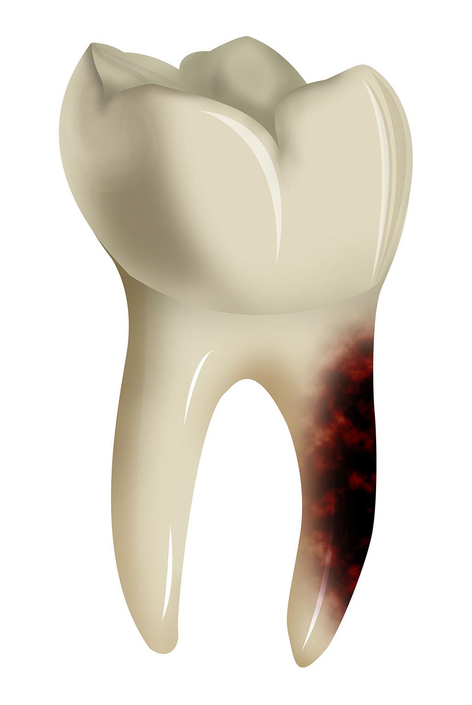 pulpite dent