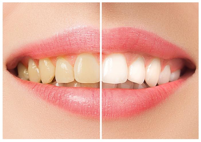 5 trucs pour garder ses dents blanches