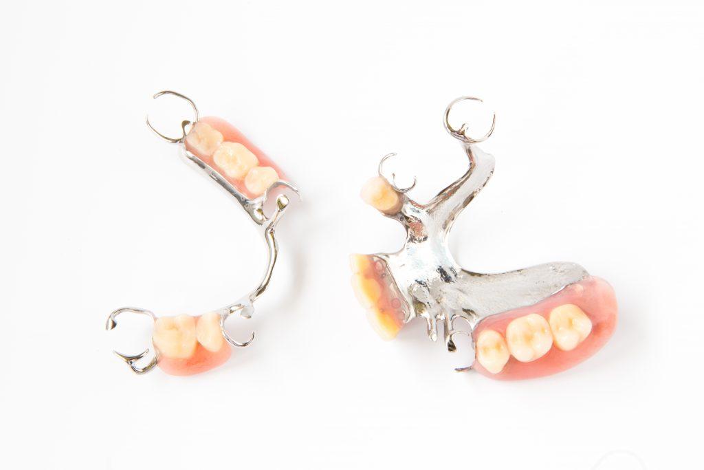 4 solutions pour remplacer une ou plusieurs dents manquantes