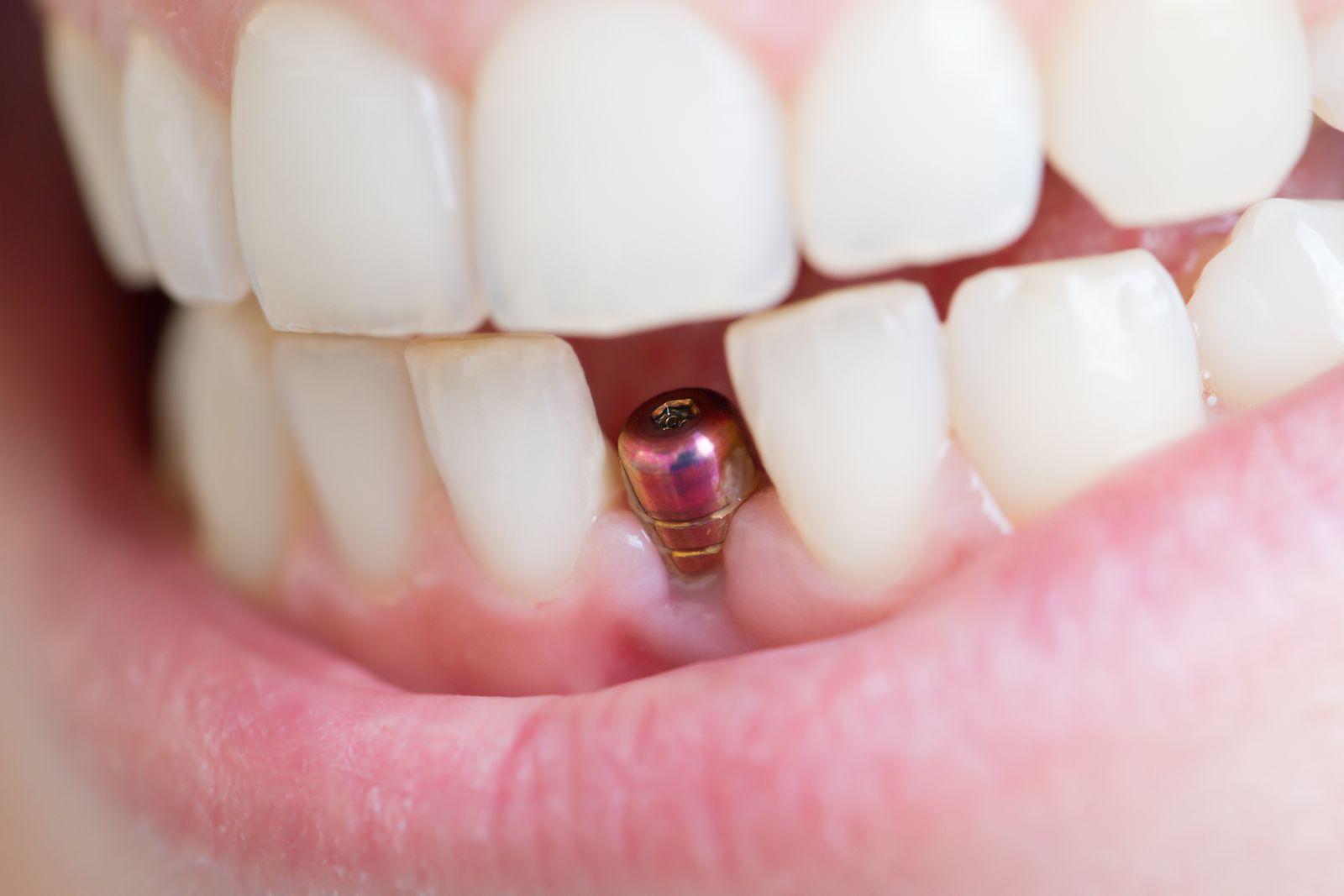 implant dentaire en bouche