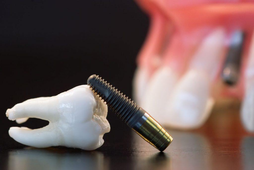 L'implant dentaire, une solution avantageuse